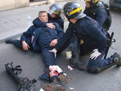 POLICIER BLESSE.2.jpg